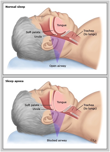 Sleep apnea in thin adults