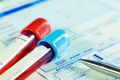 Biochemistry blood tests