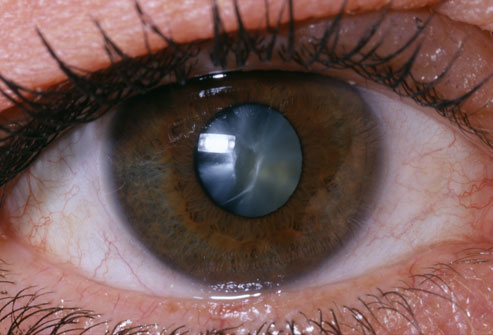 princ_rm_photo_of_close_up_of_eye
