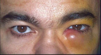 Tear-Duct-Infection